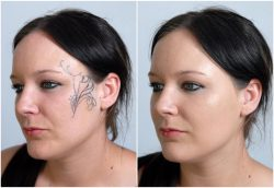 A Before and after image of a woman who has used the Veil Tattoo Kit to conceal her facial tattoo
