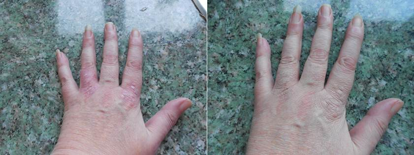 Wendy Covers Psoriasis with Veil Camouflage Cream