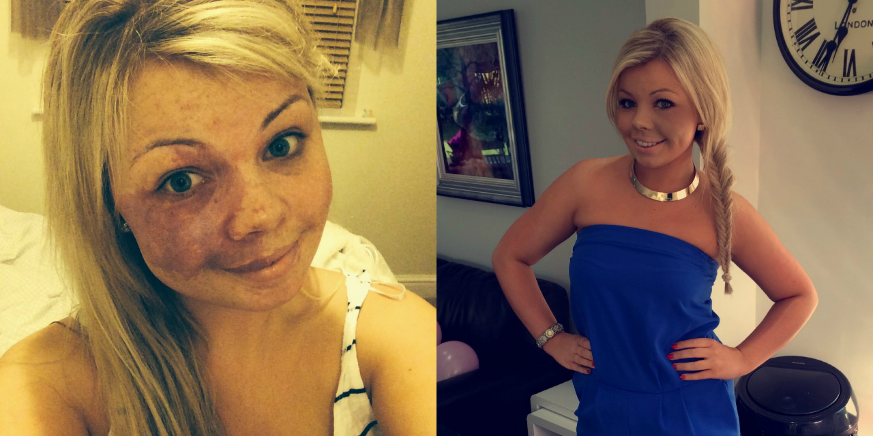 Amy Elsegood Before and After