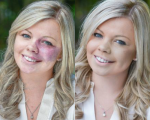 Port Wine Stain Before and After Veil Cover Cream