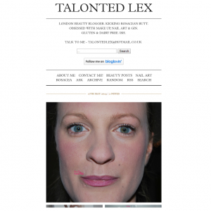 Lex Shows How Veil Cover Cream Can Conceal Rosacea and Scarring