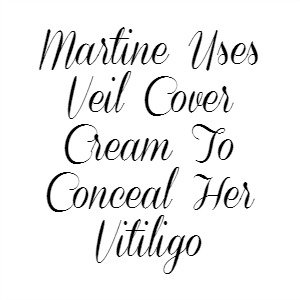 Martine Uses Veil Cover Cream To Conceal Her Vitiligo