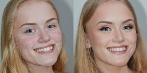 Acne Before and After Veil Cover Cream