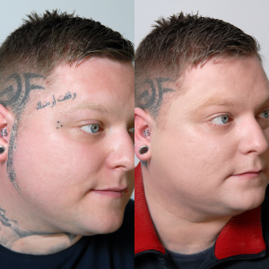 Richard's Story: Using Veil Cover Cream To Cover Tattoos