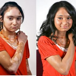 This is a before and after photograph of Veil Cover Cream concealing Vitiligo, a skin condition which causes white patches on the skin.