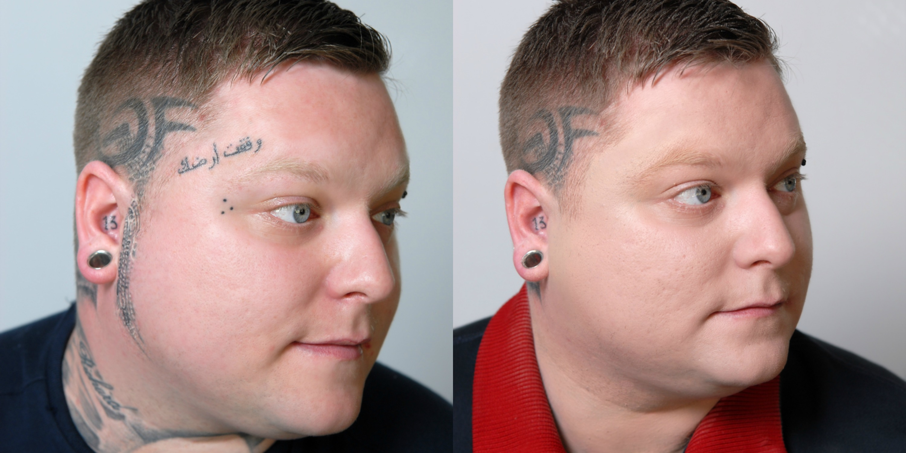 Makeup To Hide Tatoos Before and After