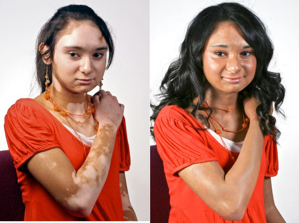 Vitiligo Cover Up Before and After