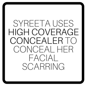 Syreeta Uses High Coverage Concealer To Conceal Her Facial Scarring