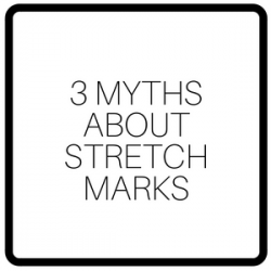 3 Myths About Stretch Marks